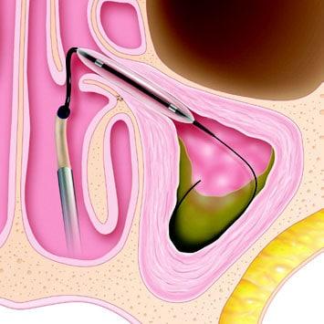 Depiction of a balloon sinusplasty procedure